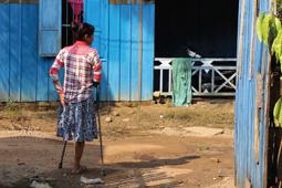 Ein Mädchen mit Krücken steht vor einer Hütte.